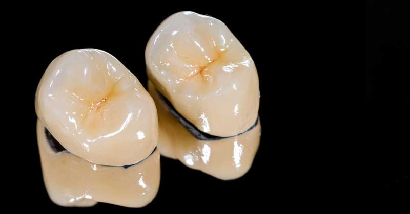 Porcelain Veneers Vs Dental Crowns Whats The Difference